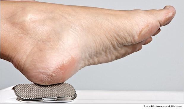 Tumit kaki kering dan merekah, cara atasi tumit kering merekah, cara lembutkan tumit kering  merekah