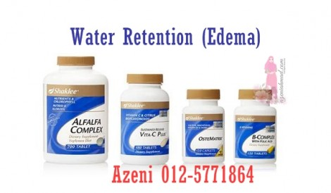 Water retention, edema, cara atasi water retention