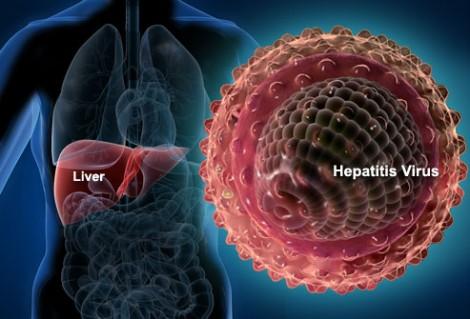 Apa itu hepatitis
