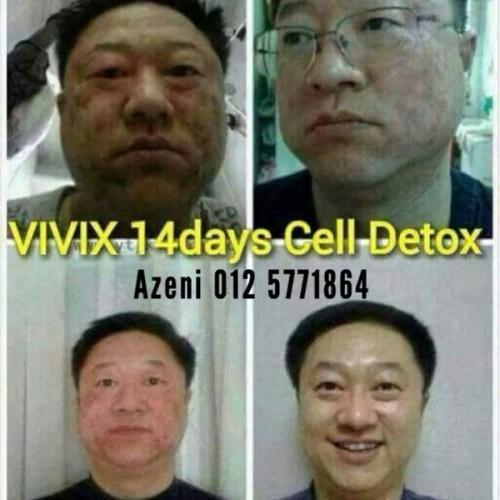 Cara rawat kulit muka rosak dengan pantas