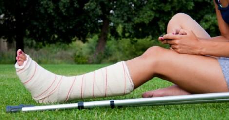cara rawat tulang patah untuk sembuh cepat