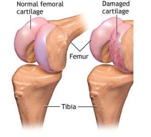 cara rawat sakit sendi lutut