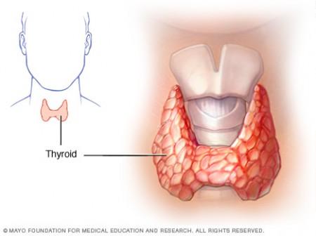 Apa itu penyakit tiroid