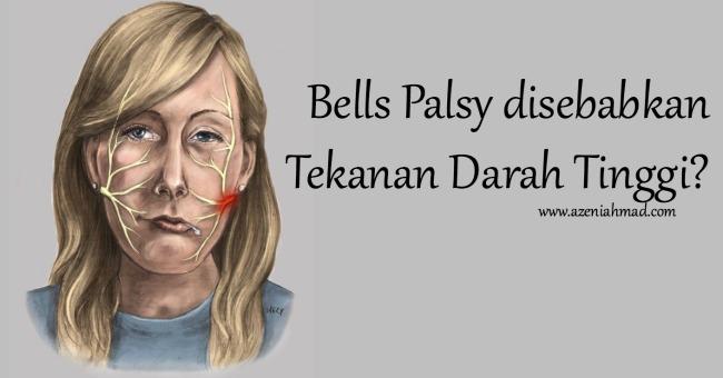 punca dan tanda bells palsy
