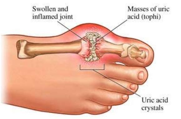 apa itu tophi gout
