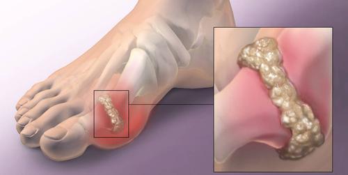 Cara rawat gout
