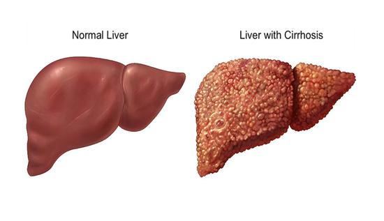 apa beza hepatitis B dan C
