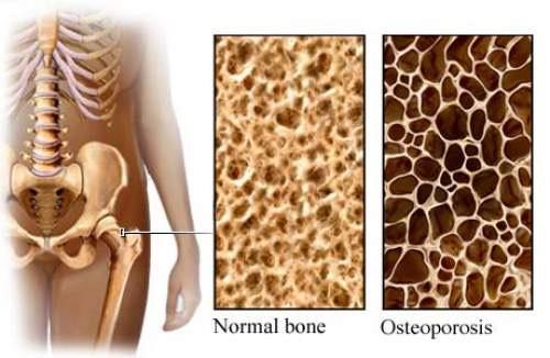 Tulang rapuh dan tulang patah