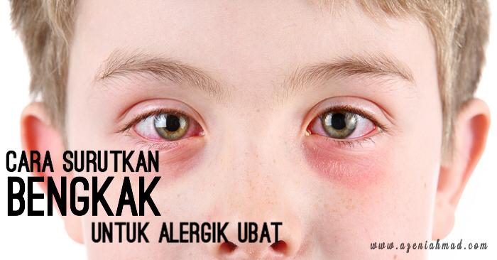 cara surutkan bengkak untuk alergik ubat